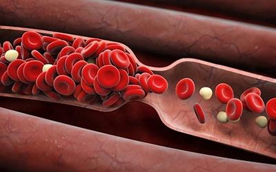 Trombofiliya nədir?