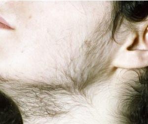 Adrenogenital sindromun əlamətləri