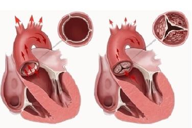 ağciyər arteriyasının qapaq çatışmazlığı nədir?