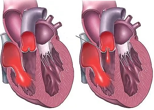 Ağciyər arteriyasının qapaq çatışmazlığının səbəbləri