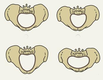 Anatomik dar çanağın səbəbləri