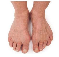 ayağın artriti nədir?