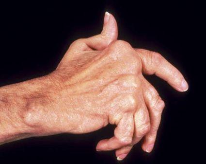 barmaqların artriti nədir?