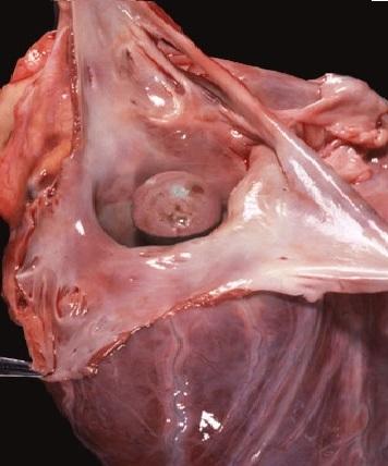 Ürək miksomasının yaranma səbəbləri