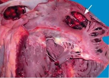 Miokardiodistrofiyanın səbəbləri