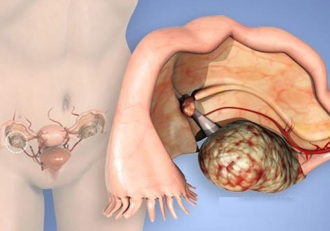 Meyqs sindromunun səbəbləri