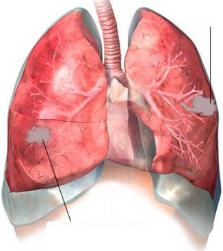 absesləşən pnevmoniya nədir?