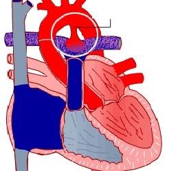 Açıq arterial axacağın səbəbləri