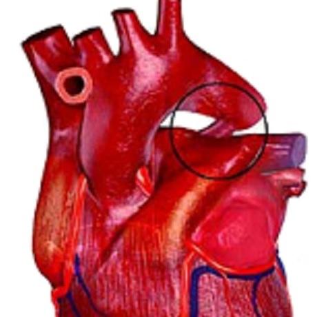Açıq arterial axacaq nədir?