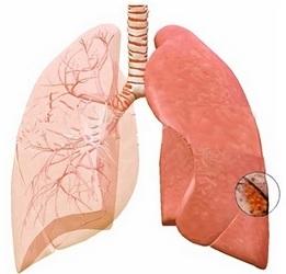 ağciyər absesi nədir?
