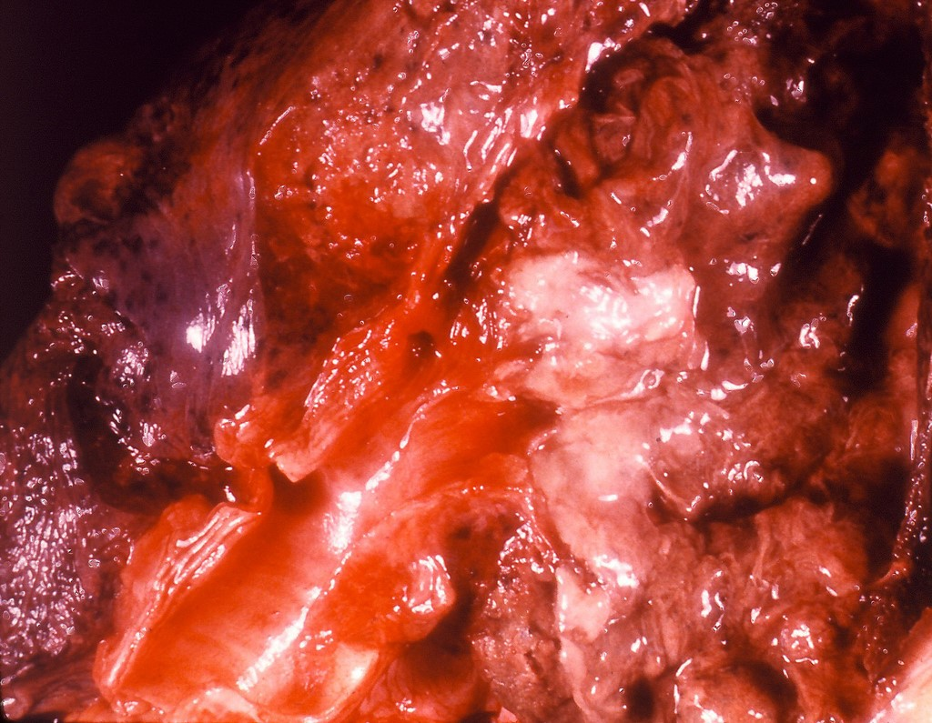 Ağciyərlərin amöbiazı nədir?
