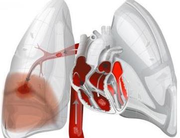 Ağciyərlərin kardiogen ödeminin səbəbləri