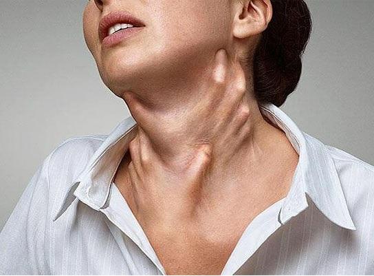 Ağciyərlərin kardiogen ödeminin əlamətləri