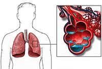 ağciyərlərin kardiogen ödemi nədir?