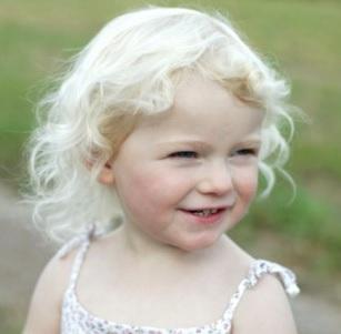 albinizm nədir?