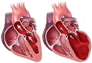 alkoqol kardiomiopatiyası nədir?