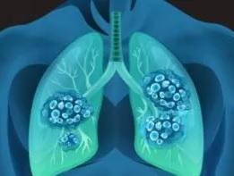 alveolyar mikrolitiaz nədir?