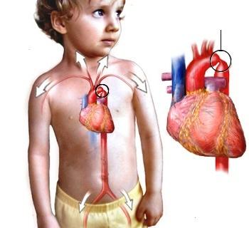 aorta koarktasiyası nədir?