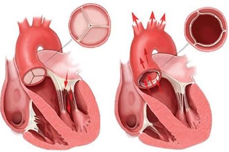 aortal çatışmazlıq nədir?