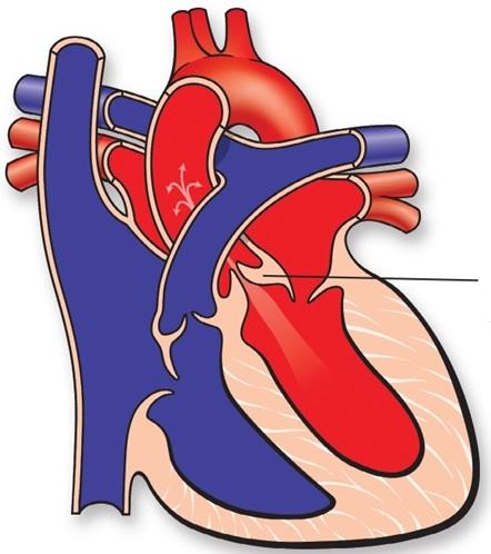 aortal stenoz nədir?