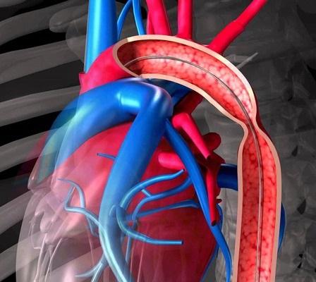 Aortanın koarktasiyasının yaranma səbəbləri