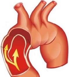 Aortanın laylanan anevrizmasının səbəbləri
