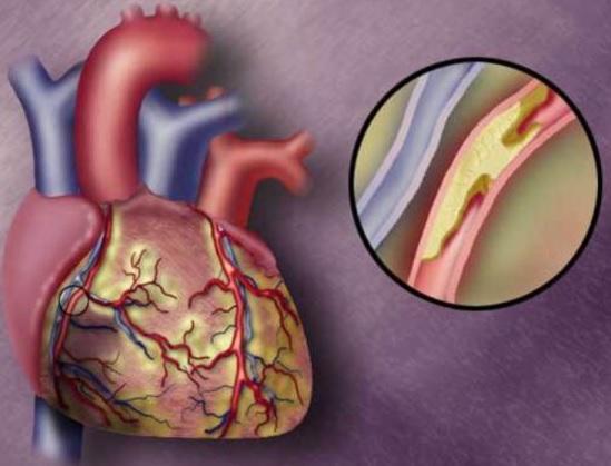 aortit nədir?