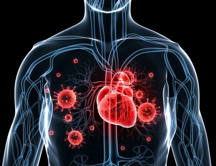 Aortitin yaranma səbəbləri