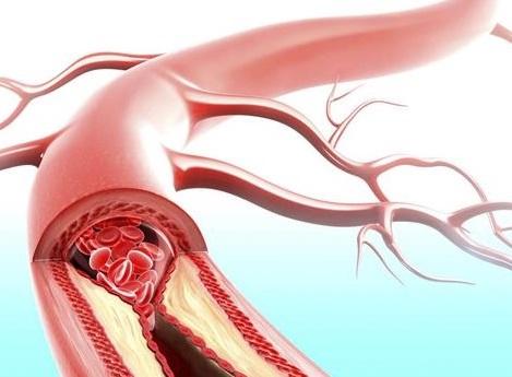 arterial hipertenziyanın əlamətləri