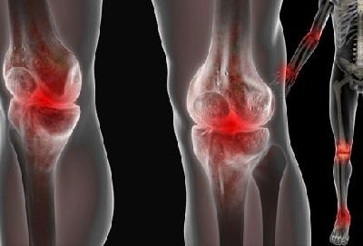 artropatiya nədir?