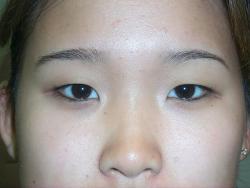 asiya tipli göz yarıqlarının korreksiyası