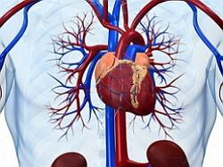 aterosklerotik kardioskleroz nədir?