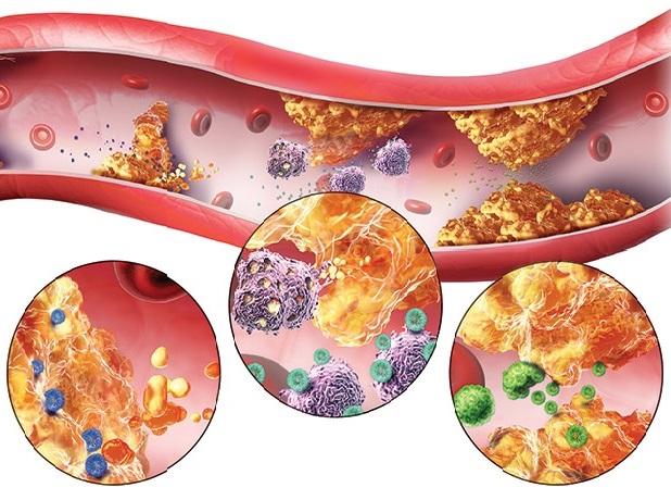 aterosklerozun səbəbləri