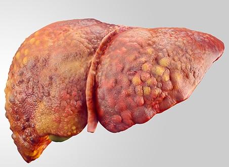 autoimmun hepatit nədir?