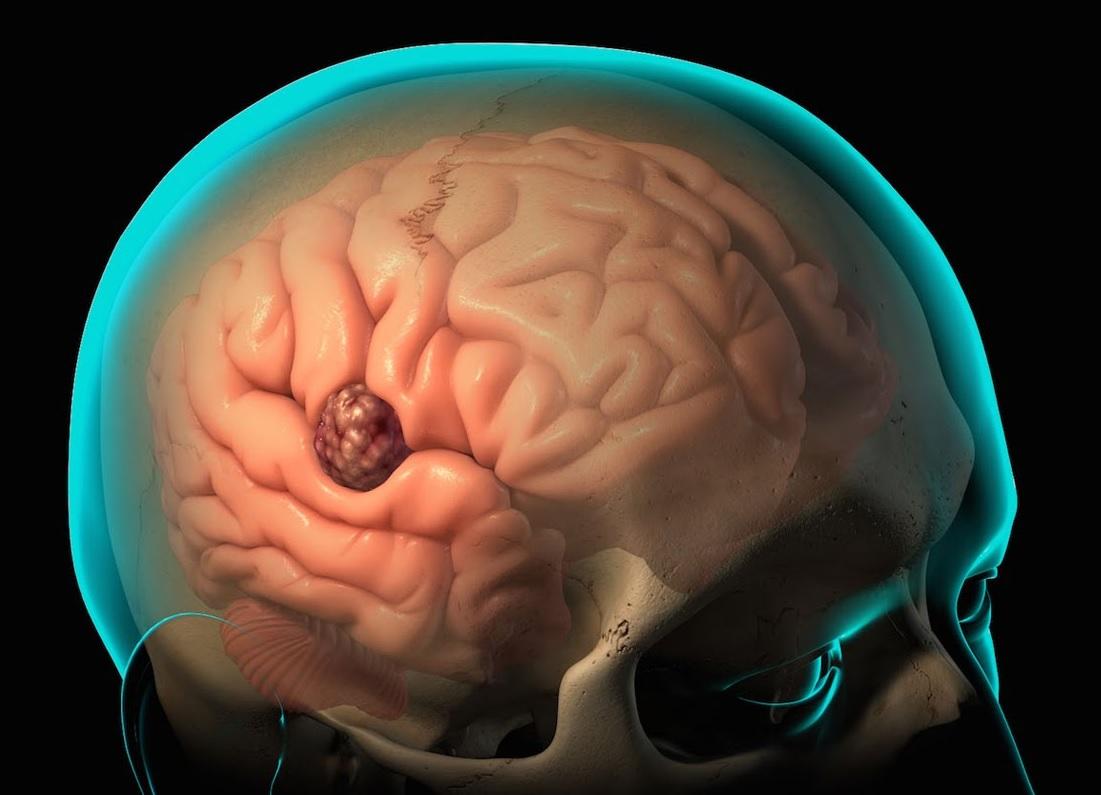 baş beynin absesi nədir?