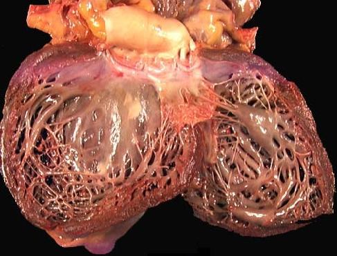 Dilatasion kardiomiopatiyanın yaranma səbəbləri