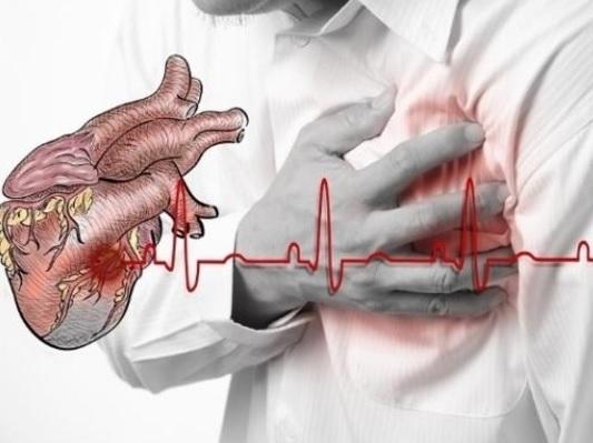 Dilatasion kardiomiopatiyanın əlamətləri