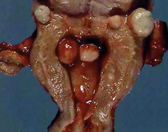 doğulan miomatoz düyünün səbəbləri