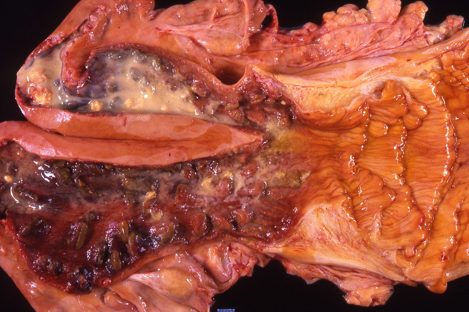 Kəskin endometrit