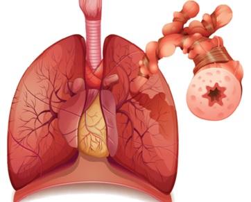 Hamilələrdə bronxial astmanın səbəbləri