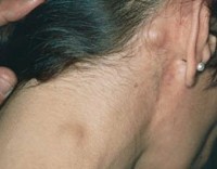 Hamilələrdə Hockin limfomasının əlamətləri