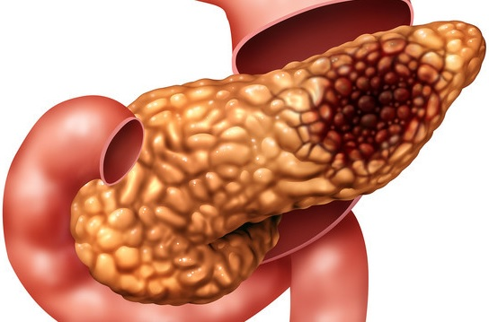 hamiləlik zamanı pankreatit nədir?