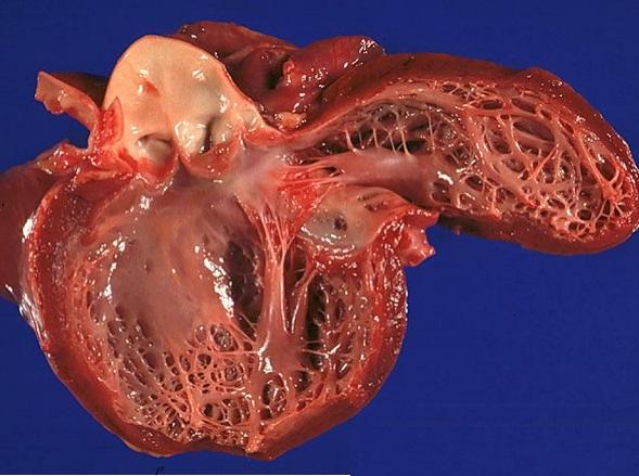 ikincili kardiomiopatiya nədir?