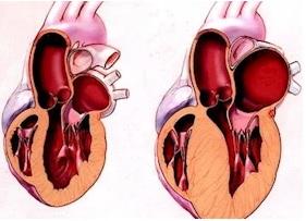 Kardiomiopatiyanın səbəbləri