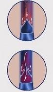 Kiçik çanaq venalarının varikoz genişlənməsinın səbəbləri