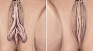 kiçik cinsiyyət dodaqlarının hipertrofiyası nədir?