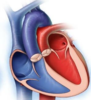 magistral damarların transpozisiyası nədir?