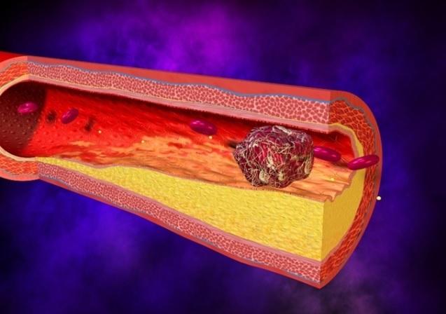 Mezenterial damarların kəskin okklüziyasının səbəbləri