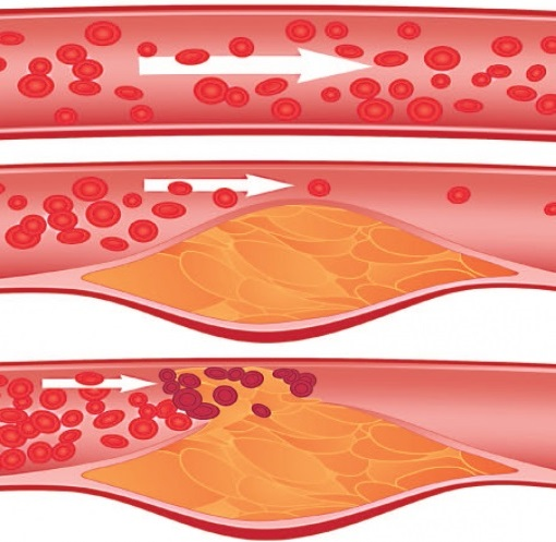 Miokard infarktının səbəbləri