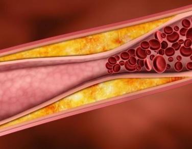Miokardın ağrısız işemiyasının səbəbləri